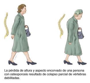 Osteoporosis en mujeres